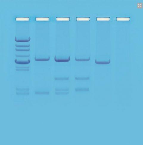DNA - test di paternità