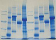 Indagine sulle diversità delle proteine